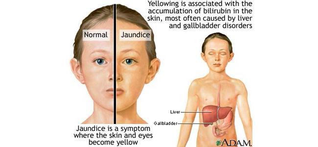 Bệnh vàng da ở trẻ sơ sinh