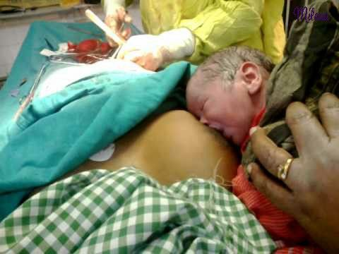 Cho con bú sau sinh mổ giúp giảm căng tức sữa sau sinh