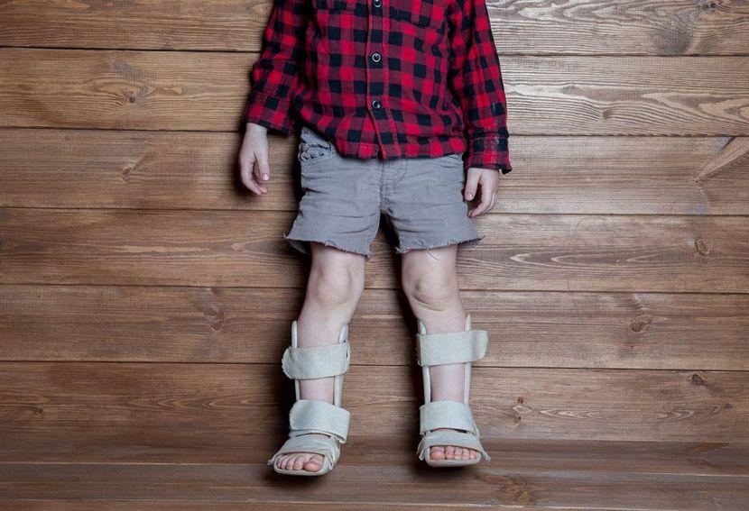 Bệnh Còi Xương Ở Trẻ Em - Milena -1