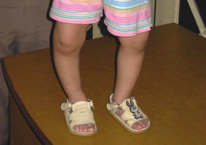 Bệnh còi xương ở trẻ em - Milena - 2
