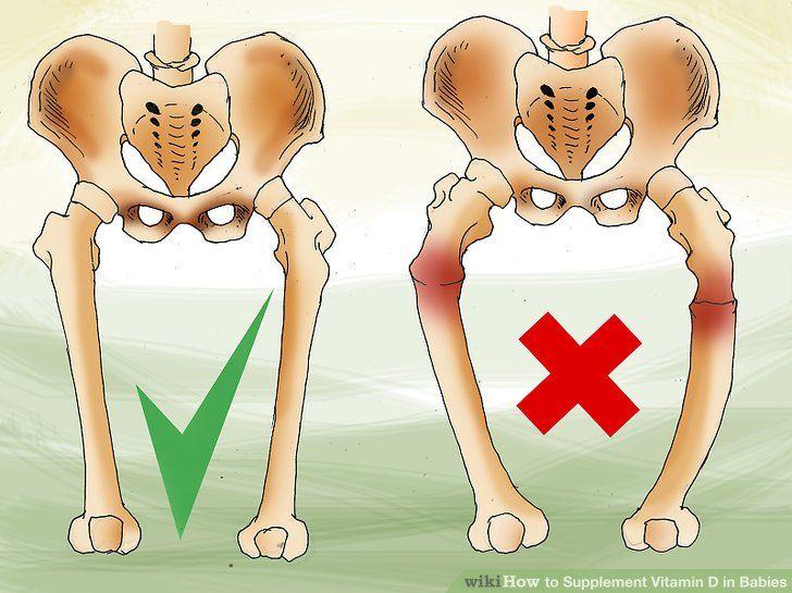 Còi xương ở trẻ sơ sinh do thiếu Vitamin D - Milena - 1